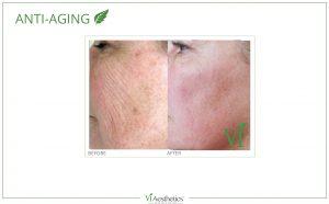 VI Peels for anti-aging