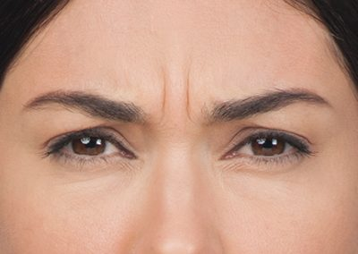 botox forehead before picture