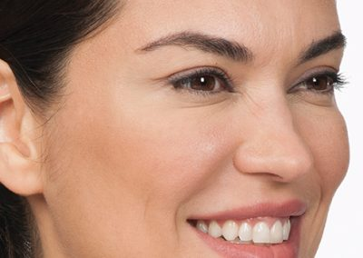 botox eye wrinkles after picture