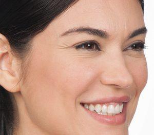 botox eye wrinkles before picture