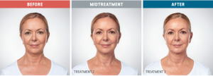 kybella cost before and after