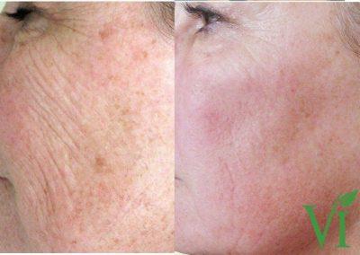VI Peel Anti-Aging