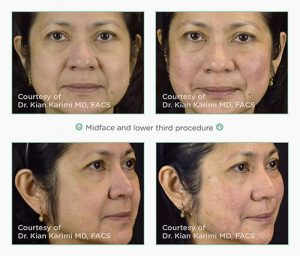 non surgical face lift thread lift