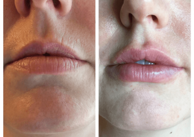 juvederm treatment on lips