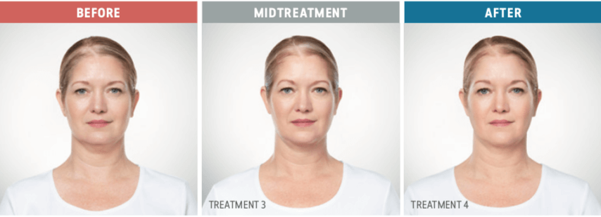 kybella woman before and after