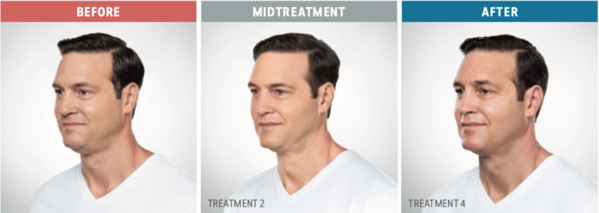 kybella man before and after