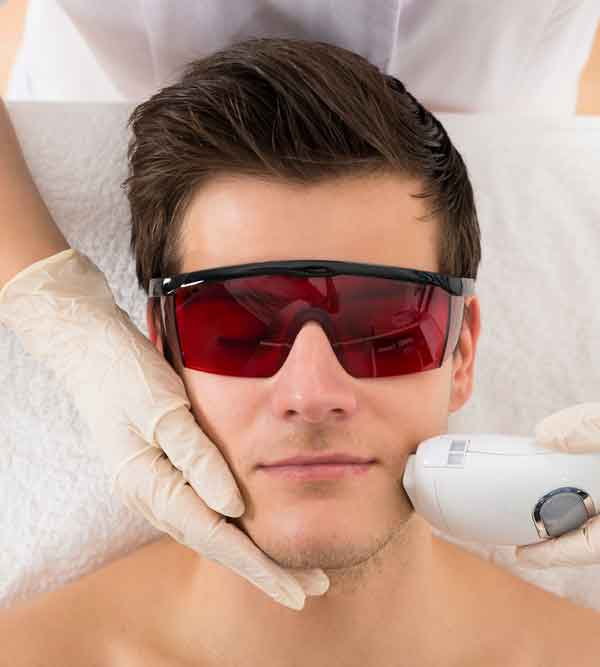 using laser hair removal for your face