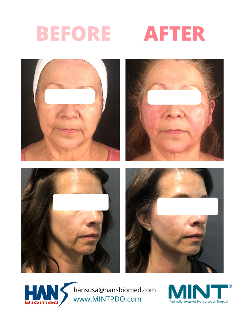 before and after thread lift treatment