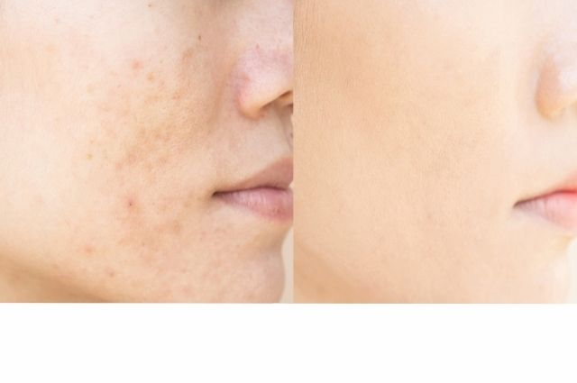 before and after a laser genesis treatment
