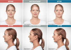 what to expect from kybella treatment sessions