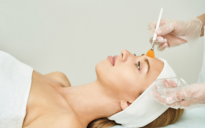 Facial Chemical Peel Aftercare [The Definitive Guide]